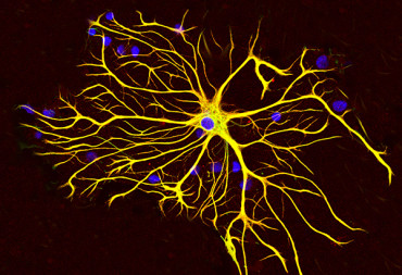Chemical transformation of human astroglial cells into neurons