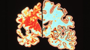 Alzheimer's researchers win brain prize